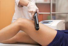 Odstraňování nežádoucích chloupků na těle